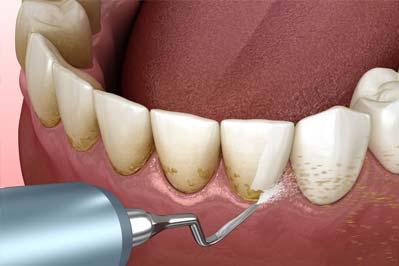 fogko-eltavolitas-egeszseg-budapest-2-kerulet-matos-dental.jpg